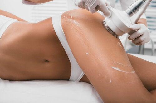 ¿Qué es la cavitación y para qué sirve?