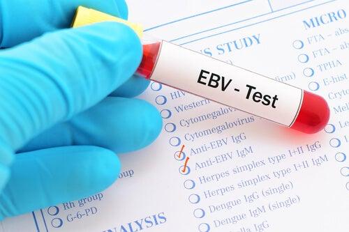 Virus de Epstein-Barr causa mononucleosis