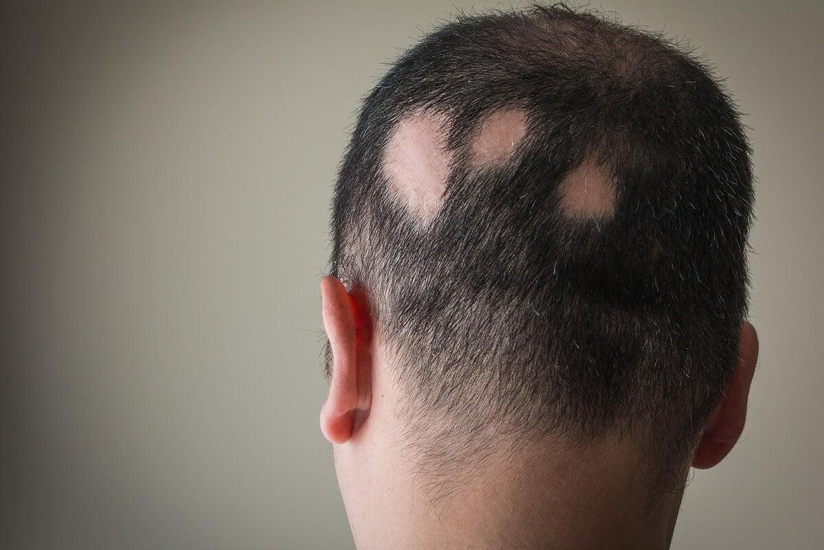 Alopecia areata en hombre