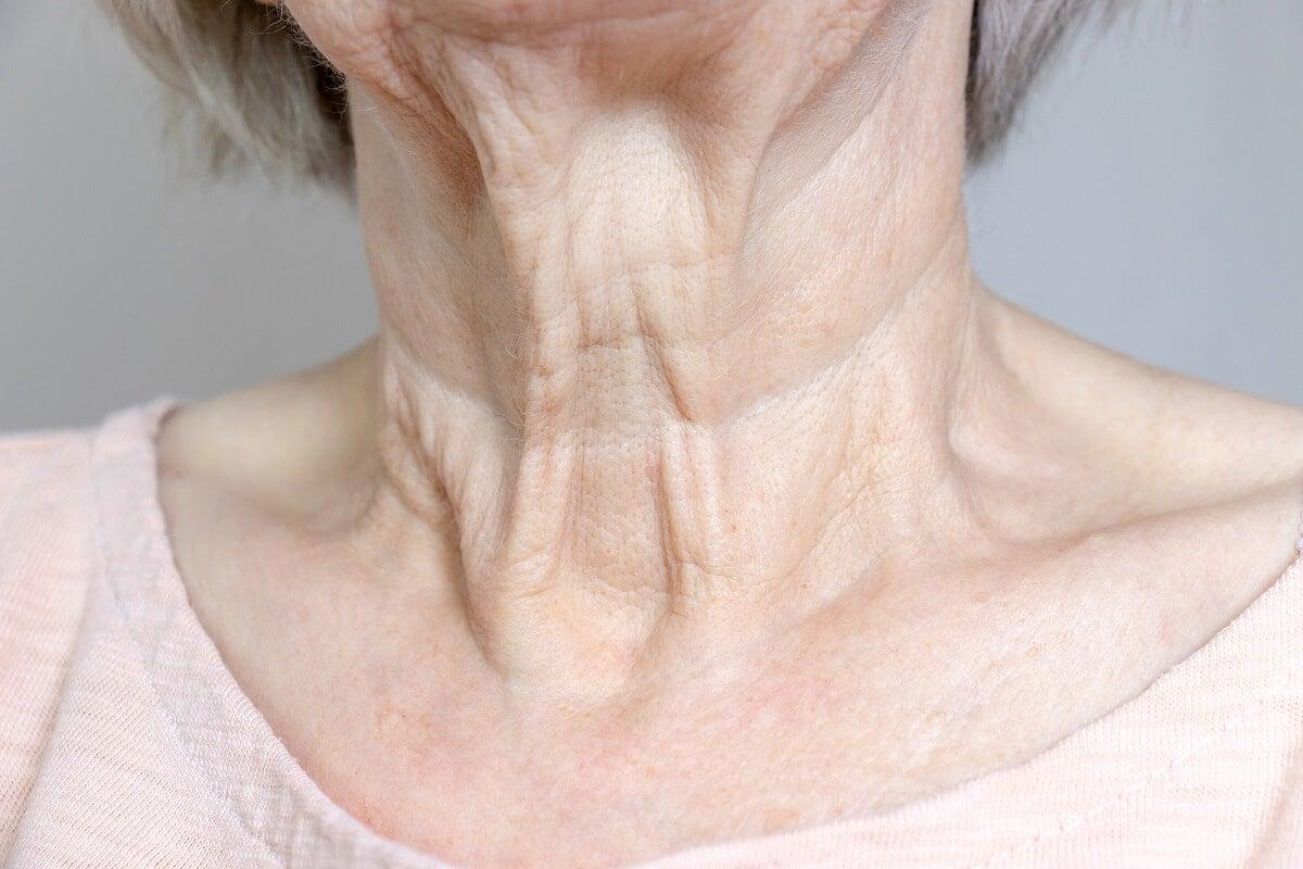 Arrugas en la zona frontal del cuello.