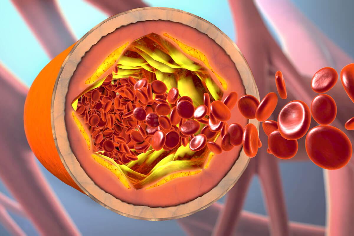 ¿En qué consiste una angina de pecho?