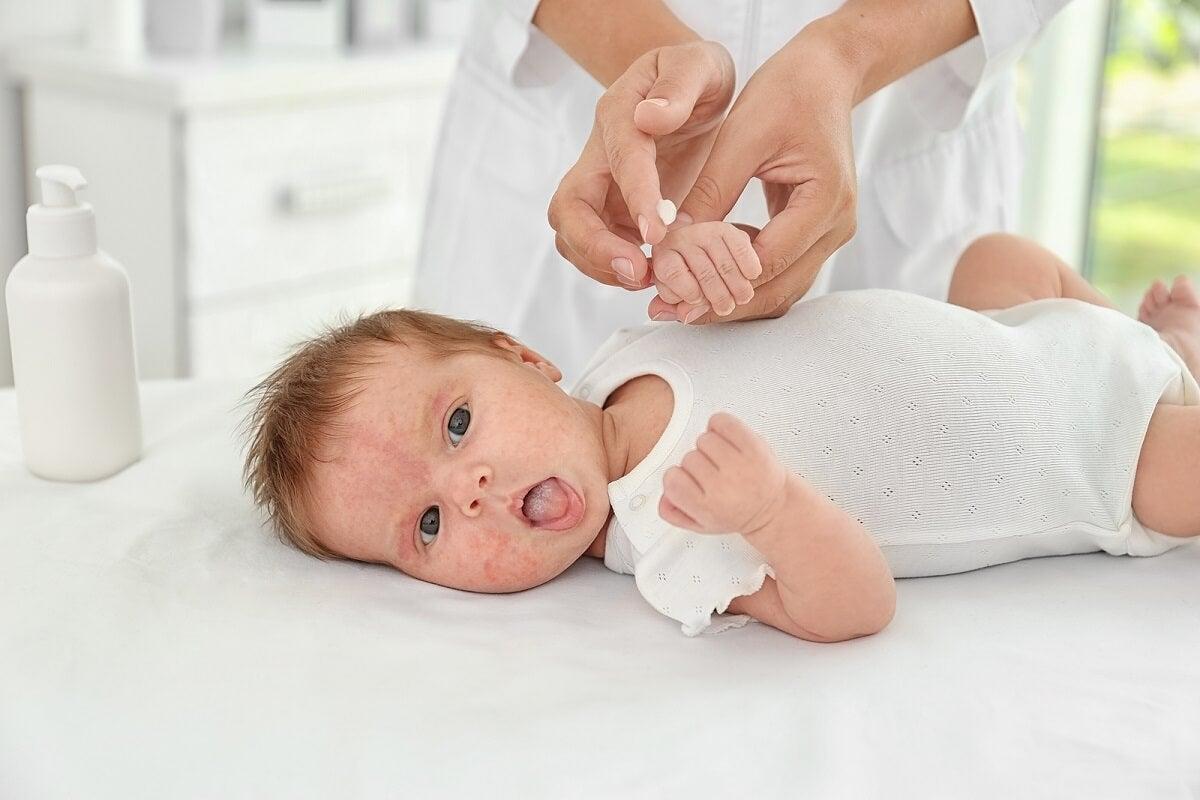 ¿Cuáles son las posible causas de la urticaria?