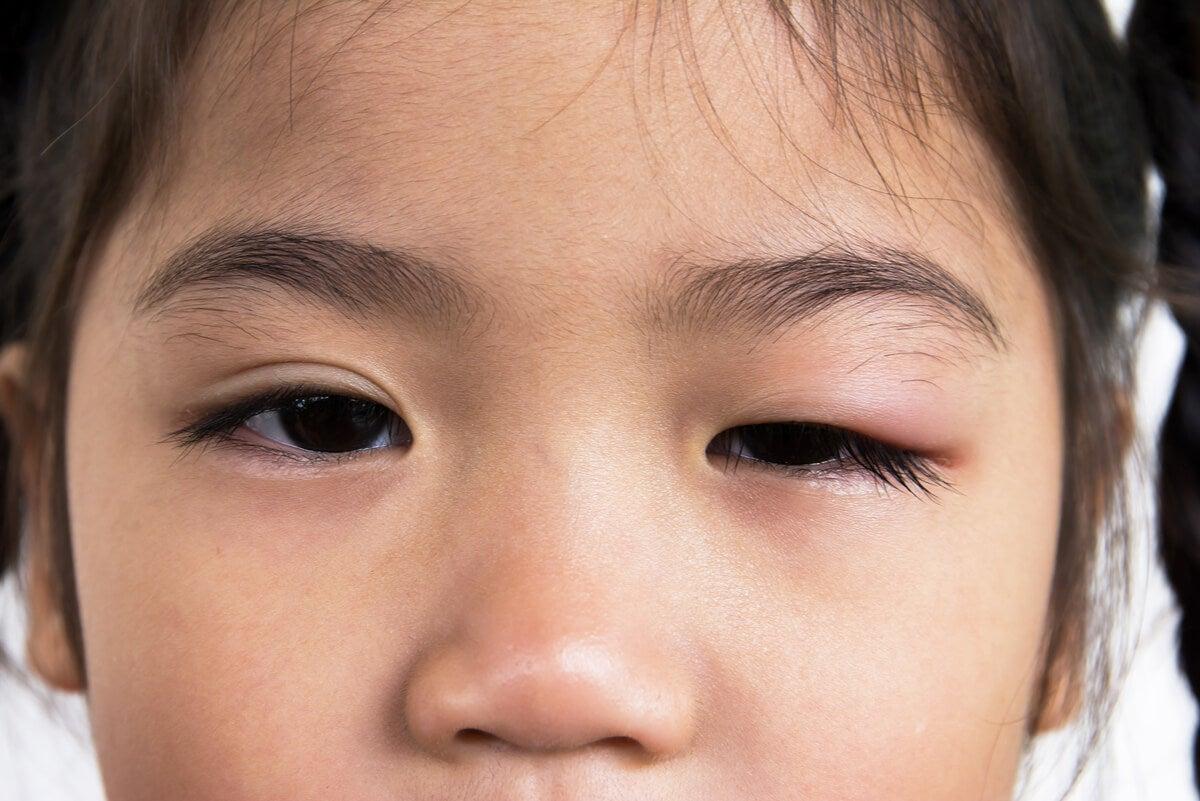 Blefaritis en niña
