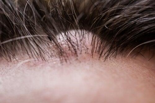 ¿Qué es un dermatofibroma?