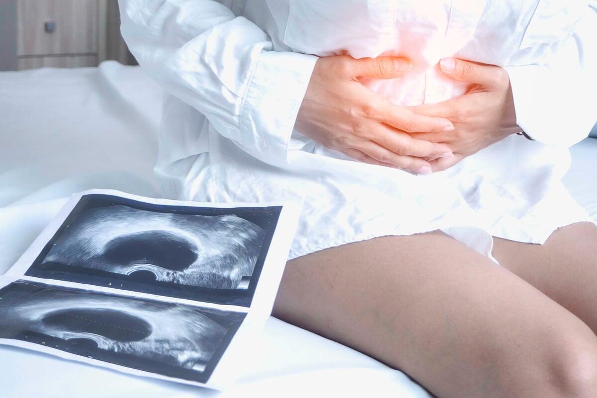 Detección de los quistes en los ovarios