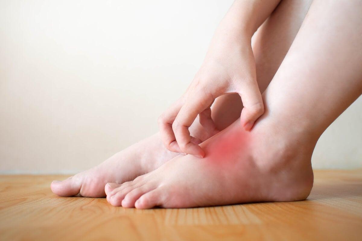 Edema en los pies con dolor
