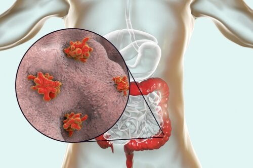 Enfermedades causadas por protozoos