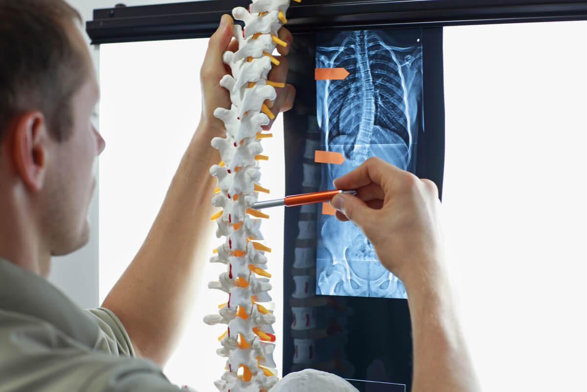 Medición de la columna vertebral para determinar escoliosis.