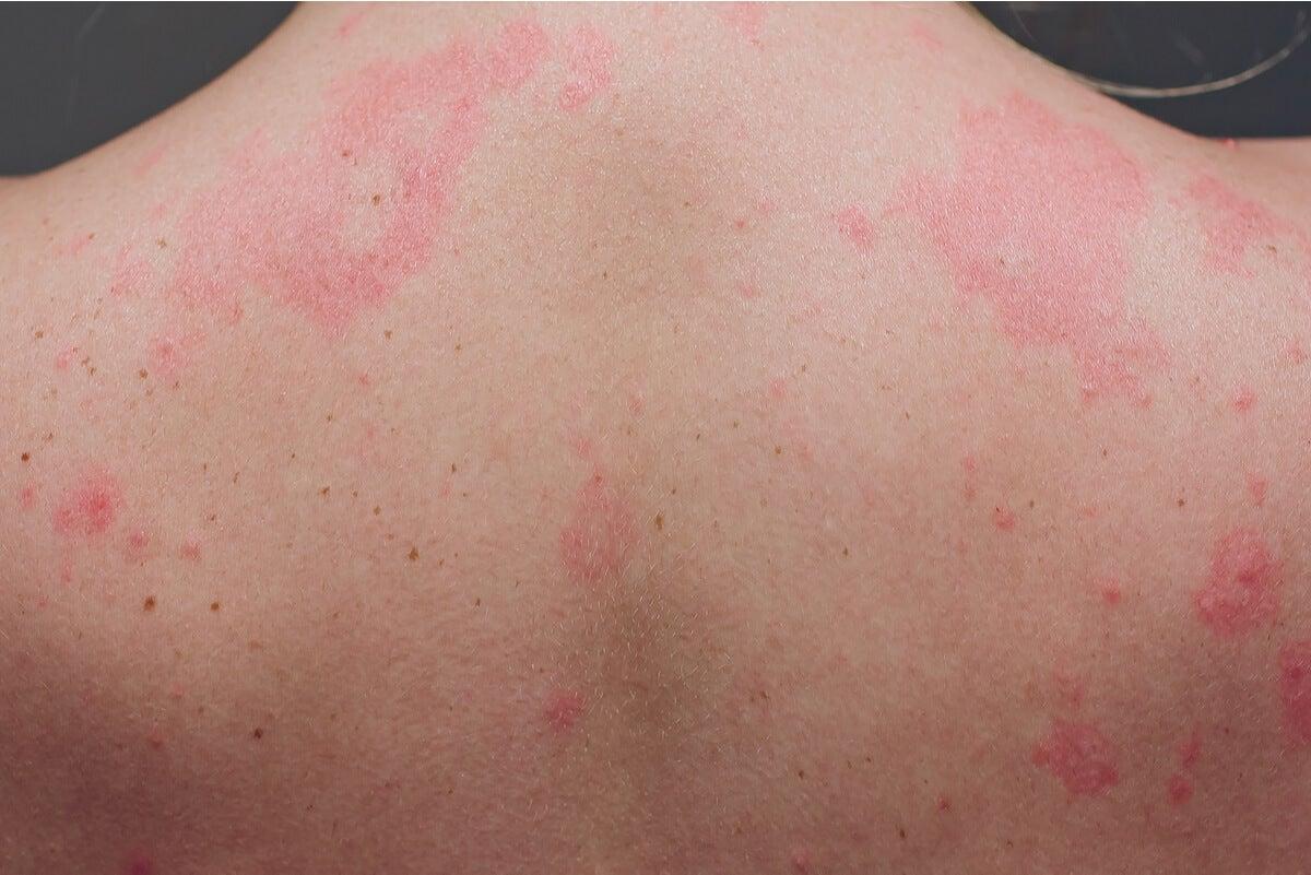 Urticaria crónica en la espalda