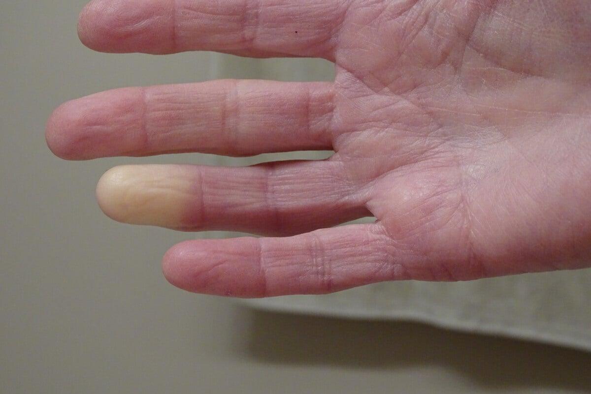 Fenómeno de Raynaud con piel pálida
