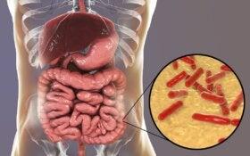 ¿Cómo saber si la flora intestinal está dañada?