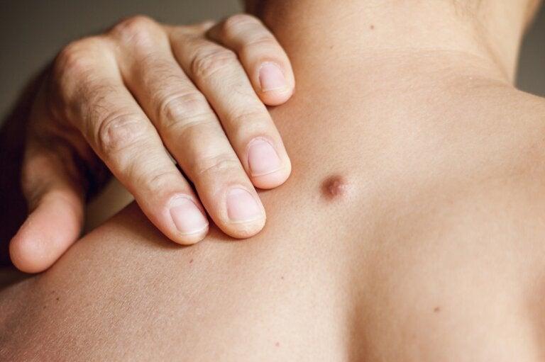Causas y tratamientos de los quistes cutáneos