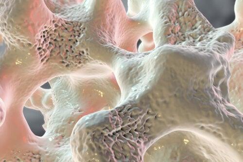 Osteoporosis: causas, síntomas, diagnóstico y tratamiento