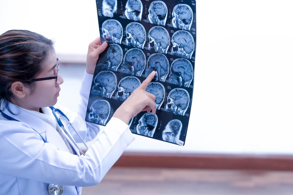 Médica revisa una tomografía cerebral