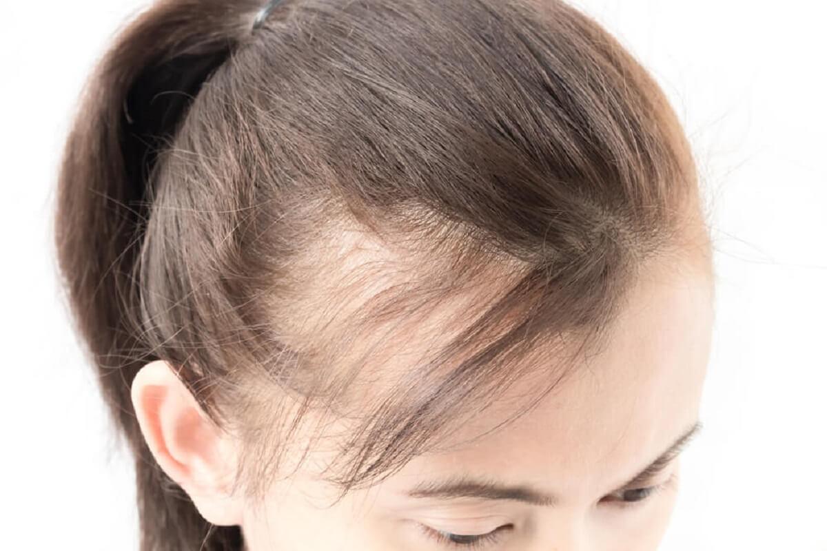 ¿Qué otros factores se asocian a la alopecia femenina?