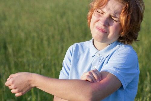 Fotoalergia y fototoxia: ¿en qué se diferencian?