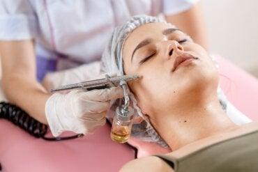Peeling químico: ¿cuáles son los ácidos utilizados?
