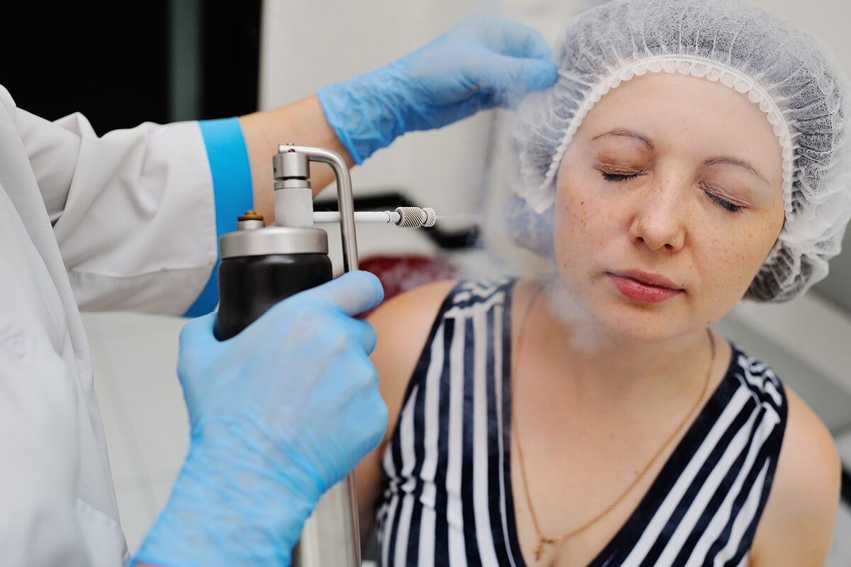 Criocirugía o crioterapia: ¿qué es y para qué sirve?