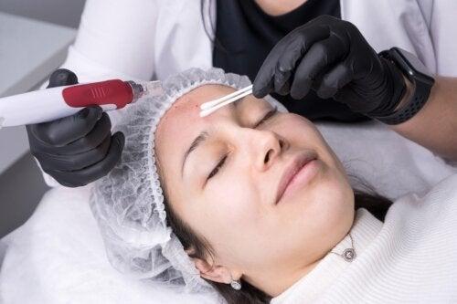 Microneedling, un nuevo tratamiento antiedad