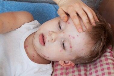Urticaria en niños: ¿cómo tratarla?