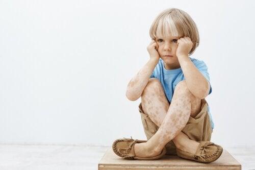 Vitíligo en niños: consejos para tener en cuenta