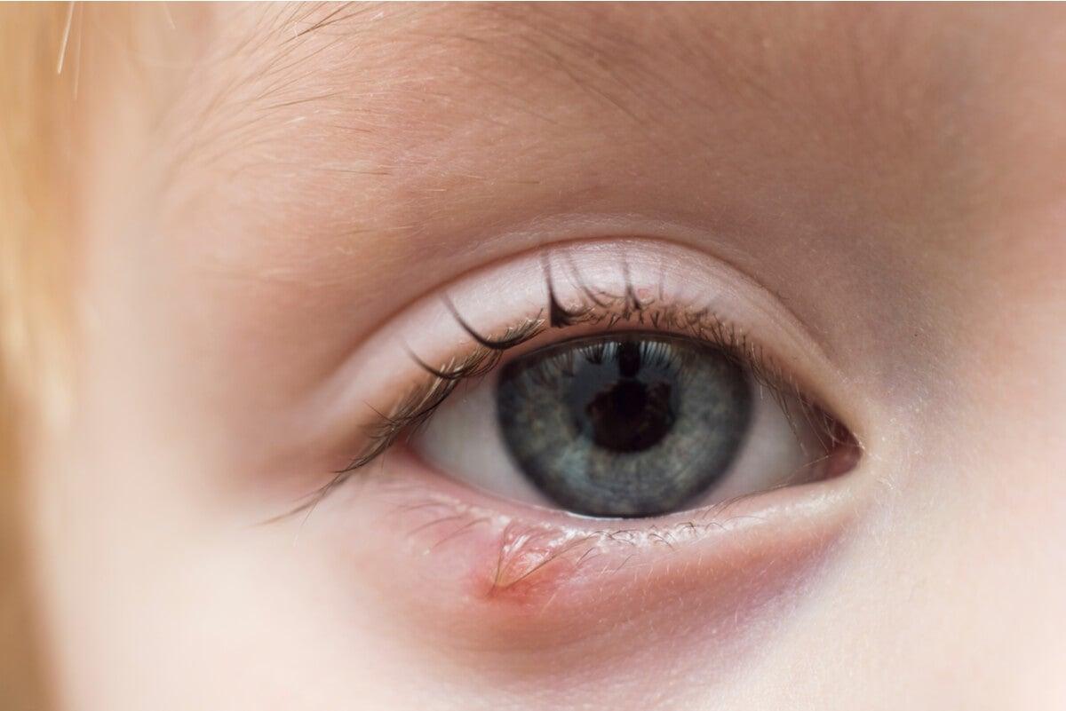 Ojo de niño con orzuelo