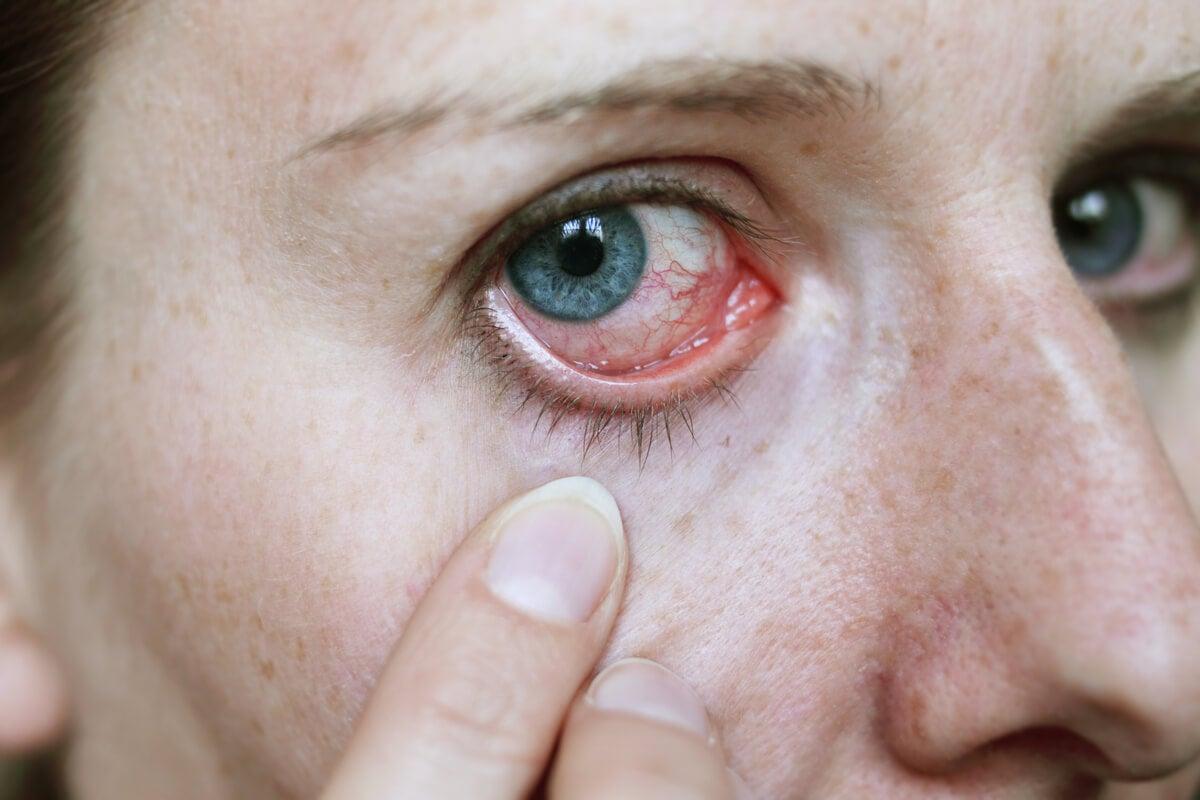 Ojo rojo en la conjuntivitis