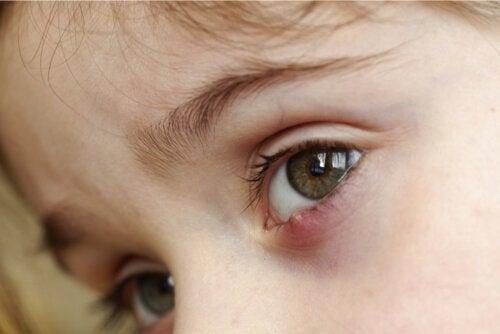Orzuelos en niños: ¿cuál es el mejor tratamiento?