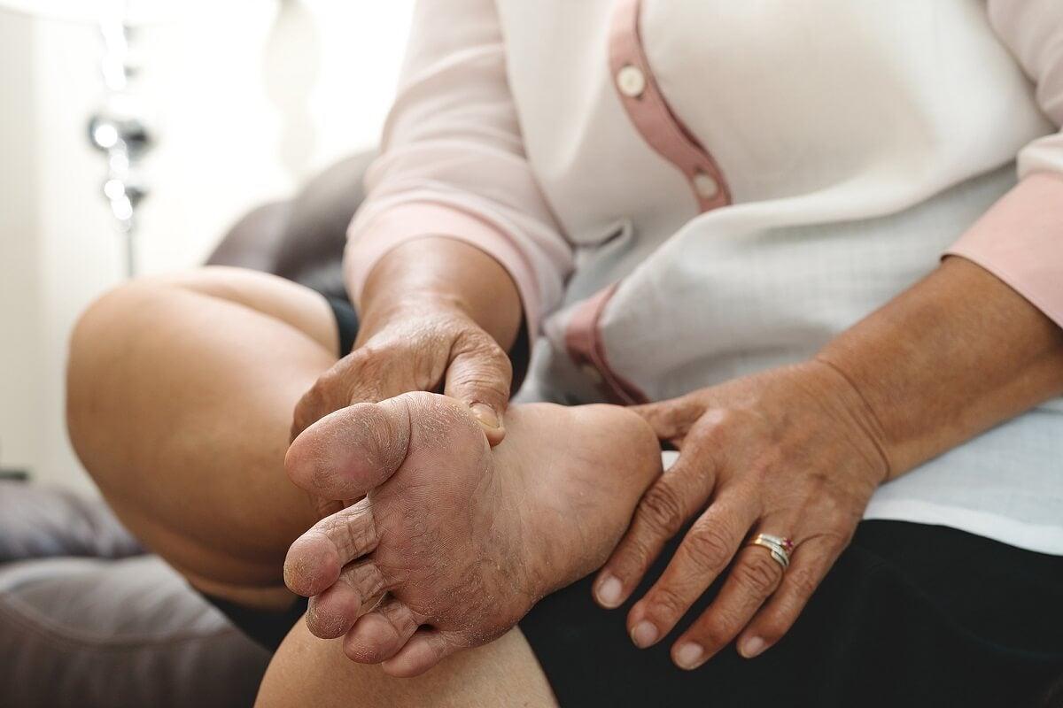 El verano y el pie diabético