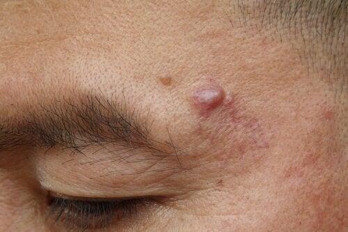 Quistes epidermoides: causas y posibles tratamientos