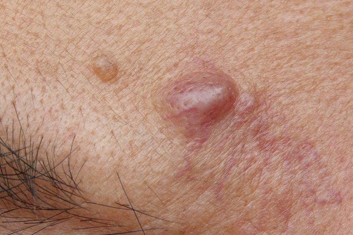 Quistes epidermoides