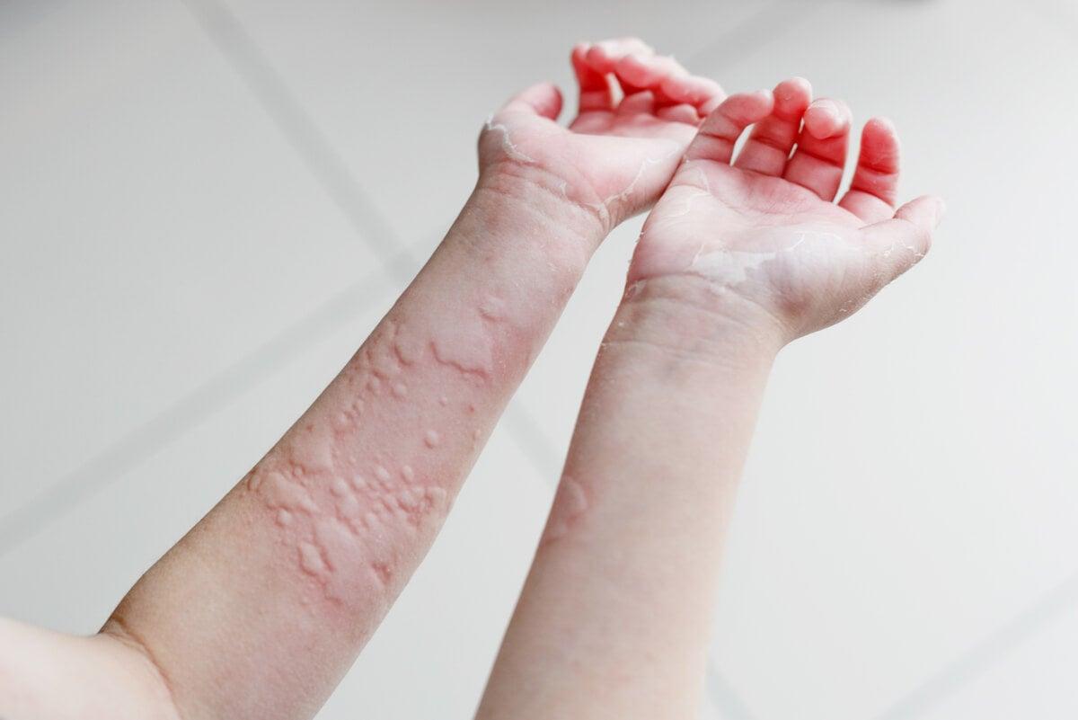 Urticaria crónica en los brazos