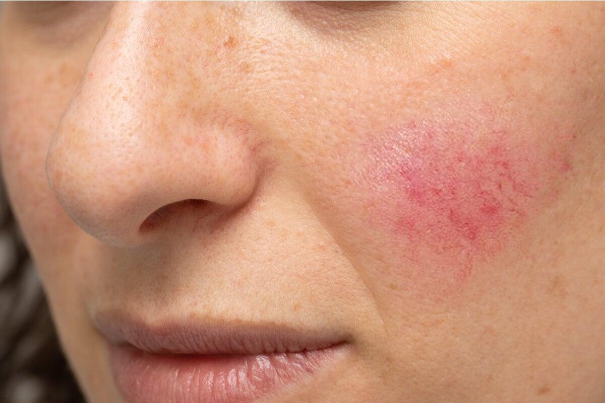 Rosácea en la piel de la mejilla