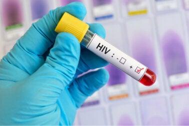Etapas de la infección del VIH