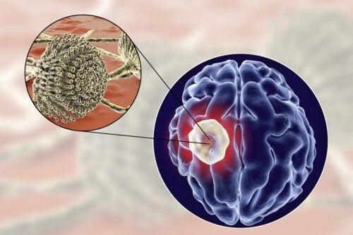 Causas y síntomas del absceso cerebral