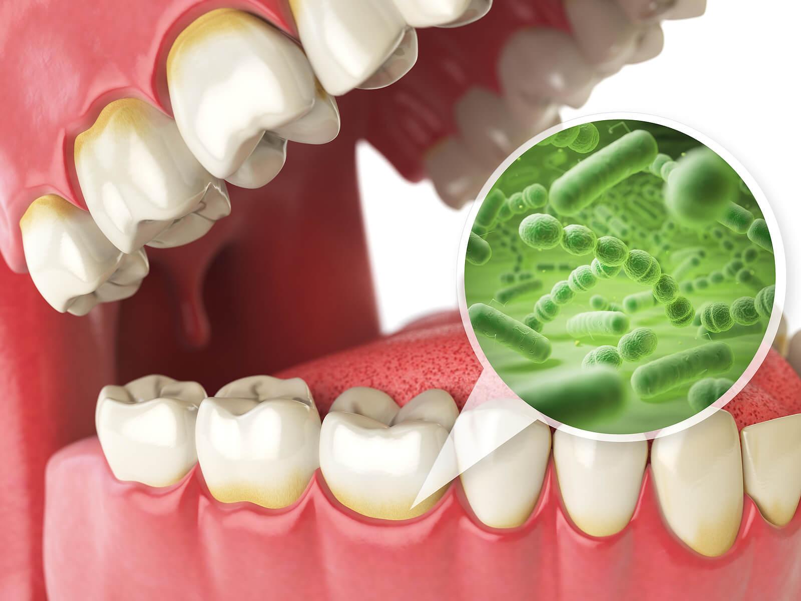 Bacterias en la boca.