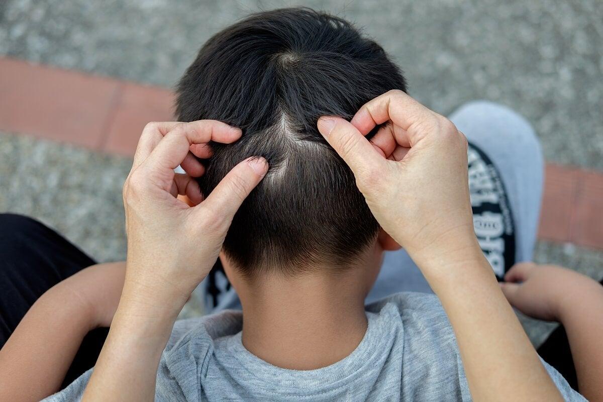 Alopecia en niños: ¿por qué se produce?