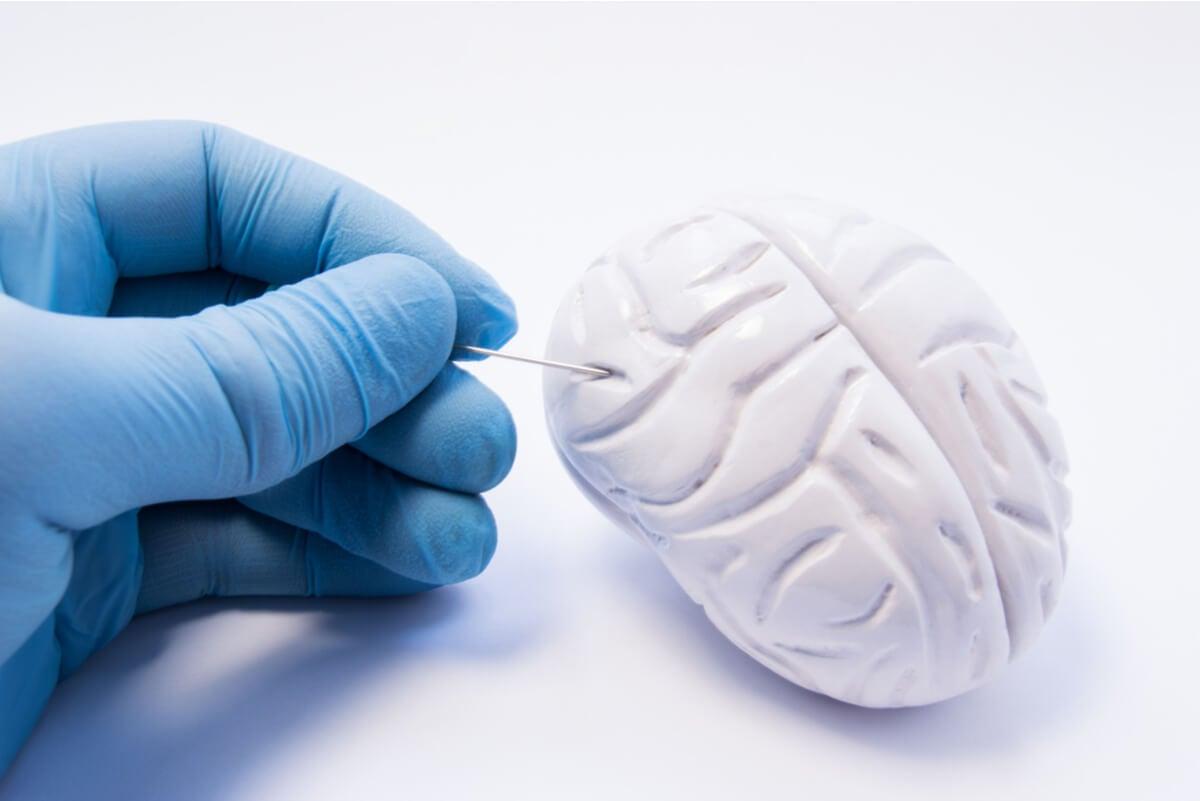 Cerebro afectado por el sedentarismo.