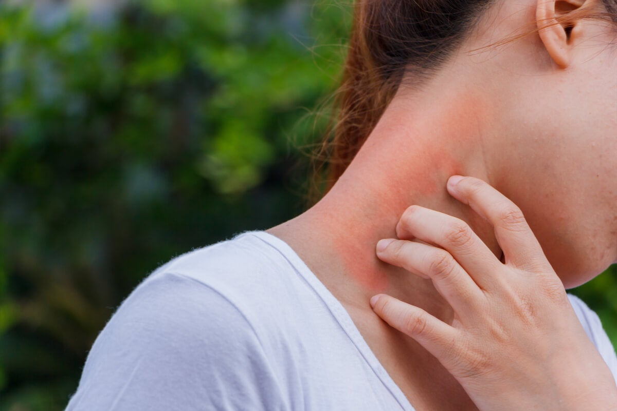 Dermatitis de contacto.
