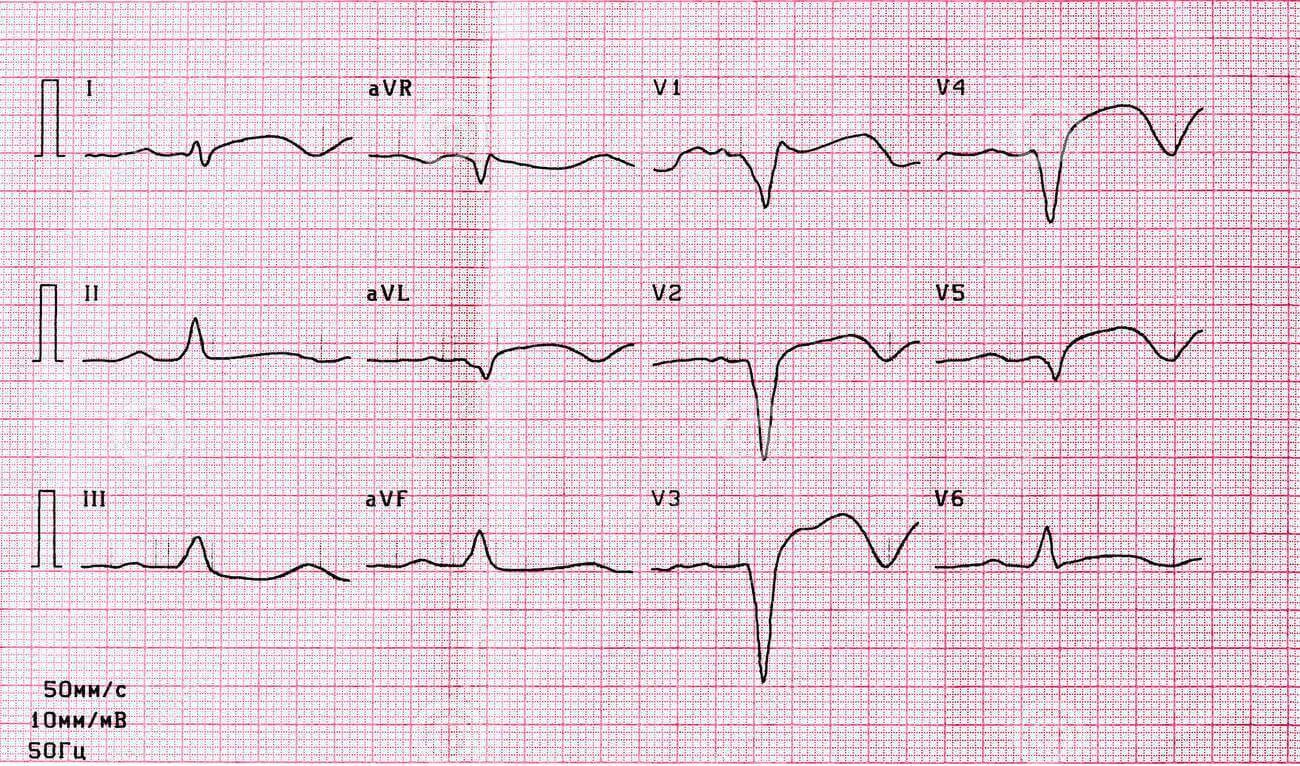 Eletrocardiograma em um paciente tomando sulpirida