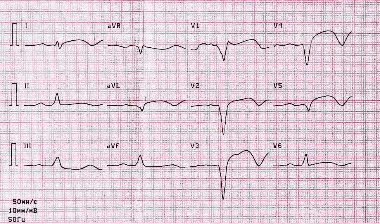 Electrocardiograma en paciente que toma sulpirida.