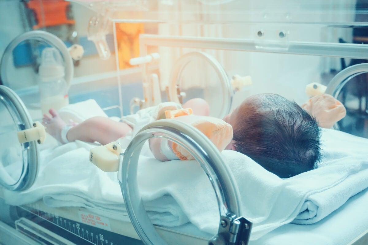 Incubadora para niño con síndrome de Russell-Silver.