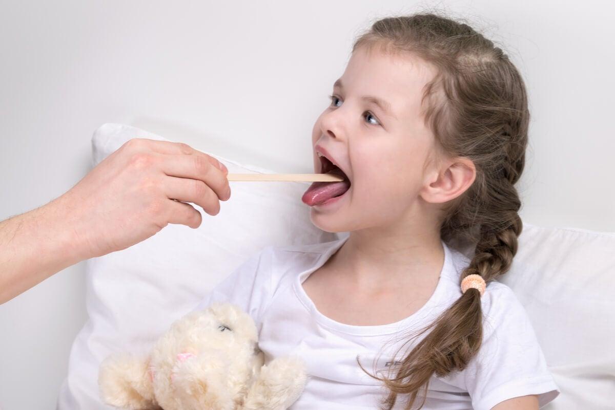 Laringitis y crup en una niña.