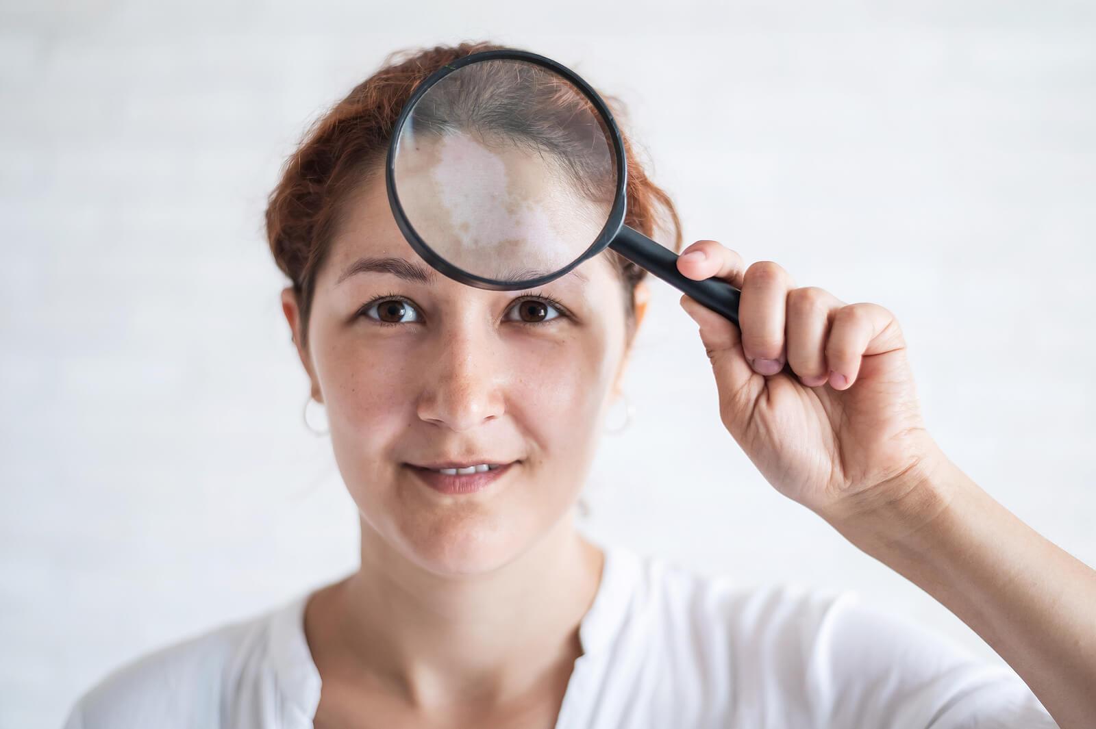 Manchas en la cara: causas, tipos y tratamientos