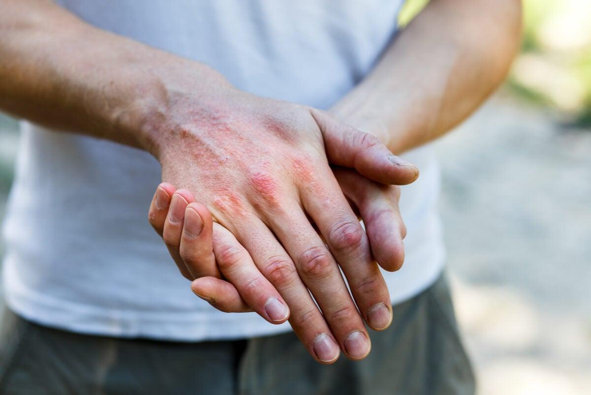Prurito de nadador en las manos.