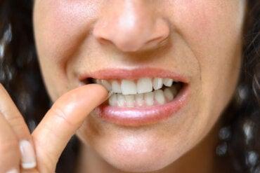 Paroniquia: ¿qué es y cuáles son sus tratamientos?