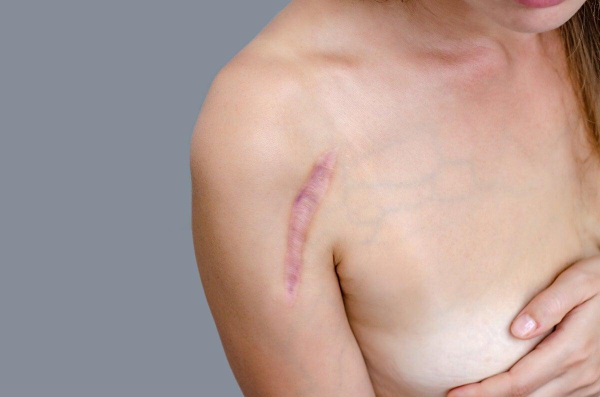 ¿Cómo se generan las cicatrices?