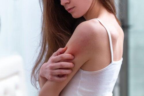¿Cómo son y cuánto duran las picaduras de pulga?