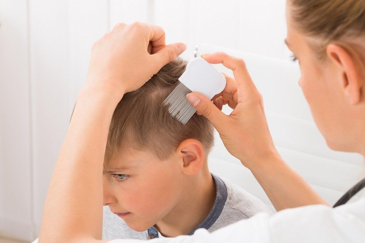 ¿En qué consiste la alopecia en niños?