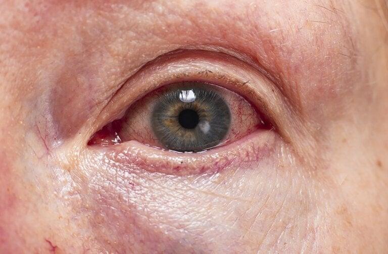 Diagnóstico y tratamiento de la uveítis